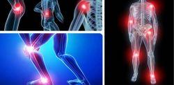 Proteoglycan- Glucosamin: Đâu là giải pháp tối ưu trong điều trị bệnh xương khớp