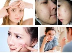 5 điều bố mẹ cần lưu ý để giúp con thoát mụn
