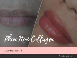 Phun môi collagen là gì?