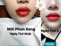 Phun môi bao lâu thì hết sưng?