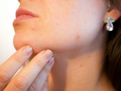 Những sai lầm trong khi rửa mặt vô tình làm hủy hoại làn da tự nhiên