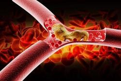 Mẹo hay cân bằng lượng cholesterol trong cơ thể