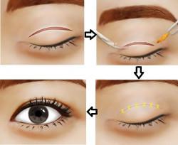 Phân tích ưu nhược điểm của nhấn mí mắt và cắt mí mắt
