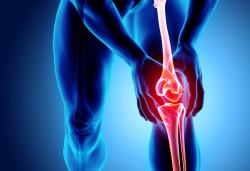 Xương khớp tạo ra từ hoạt chất nào ? Làm gì để xương chắc khỏe ?