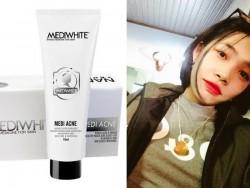 Kem trị mụn Medi White Acne chính hãng mua ở đâu?
