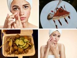 5 điều cần tránh khi da đang bị nổi mụn