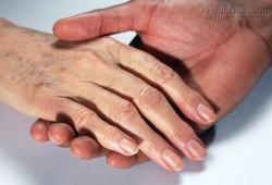 Xem bàn tay đoán bệnh