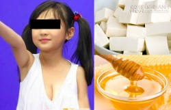 Ăn đậu, mật ong mỗi ngày, bé gái phát triển vòng 1 như người lớn