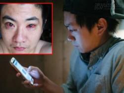 Người đàn ông bị chẩn đoán ung thư mắt vì làm điều này trong đêm