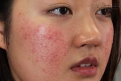 Những hậu quả khôn lường khi lạm dụng make up