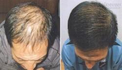 Tìm ra phương pháp đầy tiềm năng trong việc chữa chứng hói đầu