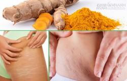 Giải quyết tất tần tật các vấn đề về da sau sinh