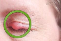 Cách chữa lẹo mắt tại nhà cực nhanh, không để lại sẹo xấu