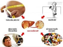 Bệnh gan nhiễm mỡ cách chữa đơn giản nhưng hiệu quả