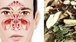Hàng nghìn người bị viêm xoang, viêm mũi được giải cứu nhờ bài thuốc này
