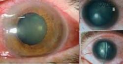 Đây là đôi mắt của những người thường xuyên sử dụng smartphone vào ban đêm