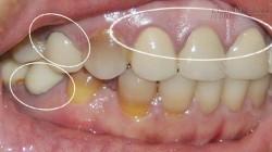 Bất ngờ với cách lấy cao răng không cần đi nha sĩ
