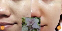Chỉ cần 2 lần duy nhất đắp mặt nạ tía tô, đảm bảo vết thâm trên mặt bạn hết 99%.
