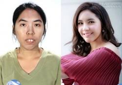 12 màn lột xác gây chấn động giới phẫu thuật thẩm mỹ Thái Lan