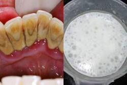 Chỉ cần chà hỗn hợp này lên răng, mảng bám, ố vàng sẽ không còn đường quay trở lại