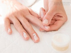 8 công thức hỗn hợp tinh dầu trị khỏi hoàn toàn bệnh nấm móng