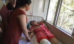 Nữ sinh bị cưa chân được hỗ trợ 2 triệu đồng mỗi tháng
