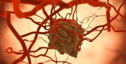 Tế bào ung thư di căn trong cơ thể theo cách đáng sợ hơn bạn tưởng rất nhiều
