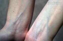 Nhìn thấy điều bất thường này, cơ thể bạn đang tố cáo các bệnh nguy hiểm nào?
