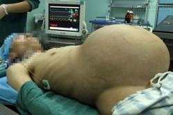 Rùng mình quá trình lấy khối u 15kg ra khỏi bụng người đàn ông sau nhiều năm