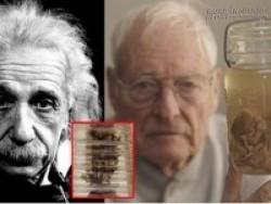 Điều gì khiến bộ não Einstein siêu việt hơn phần còn lại của nhân loại