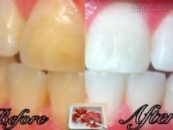 Chỉ với 2 nguyên liệu, bạn đã có ngay công thức giúp răng sáng bóng sau 5 phút