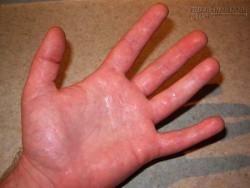 2 cách dân gian đơn giản chữa ra mồ hôi tay
