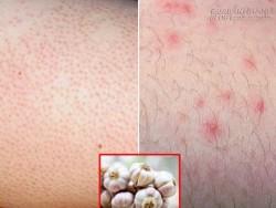 Chữa khỏi hoàn toàn viêm nang lông, da mịn nuột nà nhờ 4 nguyên liệu tìm đâu cũng có