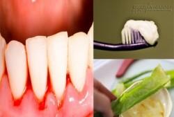 Mẹo chữa chảy máu chân răng tại nhà đơn giản mà không lo tái phát