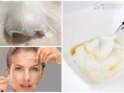 Tự chế hỗn hợp trắng da – làm 1 lần, dùng 1 tuần, da trắng như trứng gà bóc sau 1 tháng