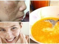 Công thức bí truyền giúp xóa sạch sành sanh nám da bằng 1 quả cam