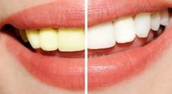 Răng không những hết ố vàng mà còn trắng sáng đều như hạt bắp nhờ công thức từ một lọ oxy già