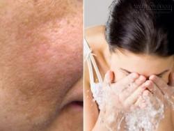 Rửa mặt với nước này mỗi ngày, nám và tàn nhang mờ dần, da trắng lên rõ rệt
