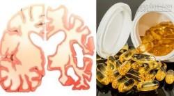 5 loại vitamin quan trọng cho não giúp phòng ngừa Alzheimer và mất trí nhớ