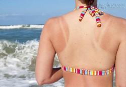 3 cách khắc phục da cháy nắng trở lại mịn màng
