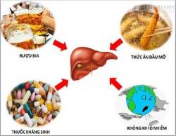 Bài thuốc điều trị viêm gan trúng độc bạn nên biết