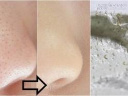 Thoa thứ này, mụn cám li ti ở cằm và cánh mũi sẽ bị hút sạch chỉ sau 30 phút.