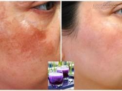 Tuyệt chiêu loại bỏ đến 90% nám trên da mặt nhờ công thức 5 ngàn đồng từ cà tím