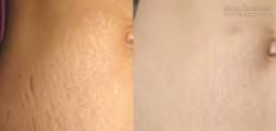 Tỏi – Thần dược là phẳng rạn da vùng bụng, hông, đùi hiệu quả 100%