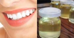 Mẹo lấy cao răng rất đơn giản mà tiết kiệm