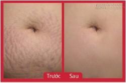 Hỗn hợp là phẳng rạn da sau sinh hiệu quả 100% – đắp 1 tuần thấy ngay kết quả