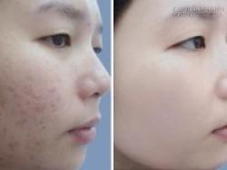 Tự làm mặt nạ sạch mụn 100%, da trắng hồng rạng rỡ ngay tại nhà