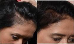 Đầu hói kinh niên hay rụng tóc hàng nắm chỉ cần trộn 4 thứ này là tóc con sẽ mọc ra siêu nhanh