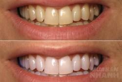 Đổ oxy già lên bông tẩy trang rồi lau, răng trắng sáng, hết ố vàng, cao răng bong thành mảng chỉ sau 1 đêm