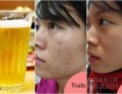1 lon bia rẻ bèo - 3 công thức trị mụn cấp tốc mà chẳng cần bất kì một loại kem trị mụn đắt đỏ nào.